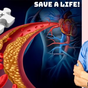 How to Recognize a Heart Attack and Save a Life (Remember P.U.L.S.E.) - Dr Mandell