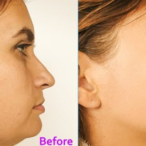 Effective Exercises to Slim Down Face & Double Chin | Dr Alan Mandell, DC