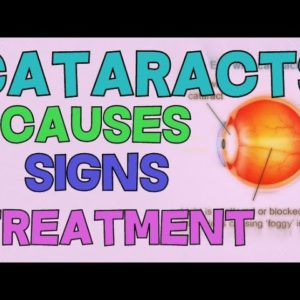 What are Cataracts? Cause Types Symptoms RAFD TREATMENT   NUCLEAR POSTERIOR SUBCAPSULAR CORTICAL