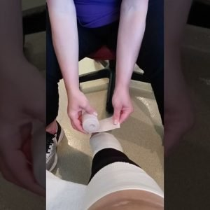 A day in life with lymphedema
