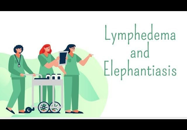 Lymphedema & Elephantiasis
