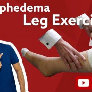 Lymphedema Exercises | Lymphedema Leg Exercises | Lymphedema Ka Ilaj