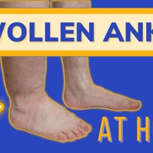 Swollen Painful Ankles, Fix them At Home!