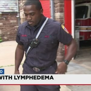 Video: Local firefighter works to raise awareness about Lymphedema